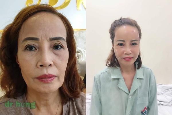 """Sau khi nhấn mí cho chồng, cô dấu 62 tuổi quyết định """"đập mặt xây lại"""" khiến không ai nhận ra"""