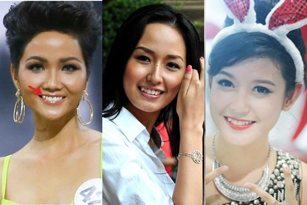 Các nàng hậu Việt sau khi từ bỏ răng khểnh, nhan sắc sẽ đi về đâu?
