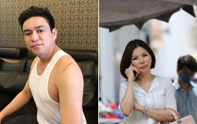 Bị tình nghi thuê giang hồ chém chồng, vợ cũ của bác sĩ Chiêm Quốc Thái bị bắt