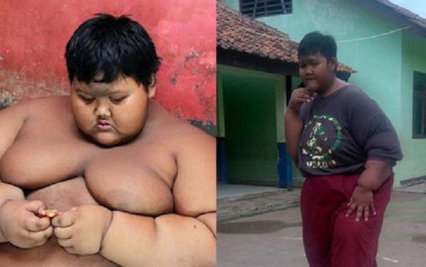 Cậu bé béo nhất thế giới nặng 190 kg đã phẫu thuật để có thể đến trường đi học