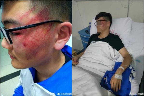 Nam sinh bị thầy giáo tát 12 phát nhập viện, chẩn đoán mất một phần thính lực