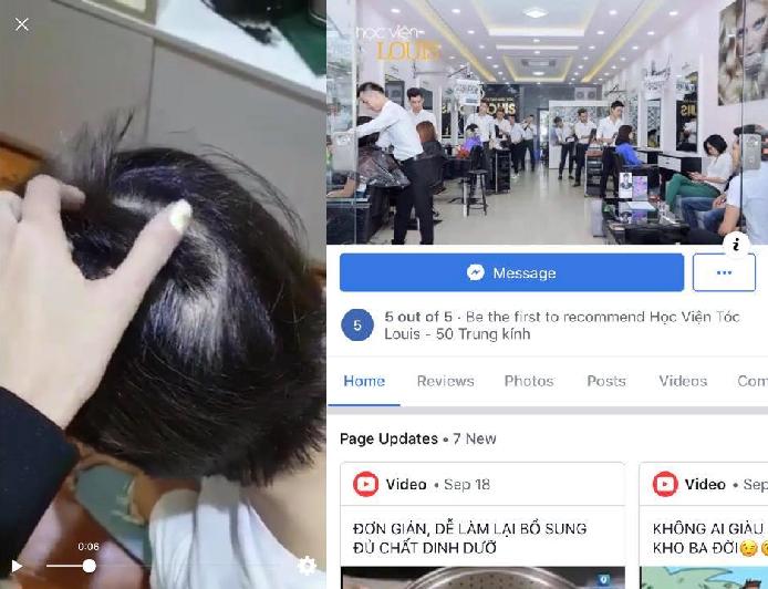"""Chỉ đi """"gội đầu"""" tại salon tóc, cô gái xinh đẹp bị rụng 2/3 số tóc trên đầu, bác sỹ xác định bị tổn thương do hóa chất"""