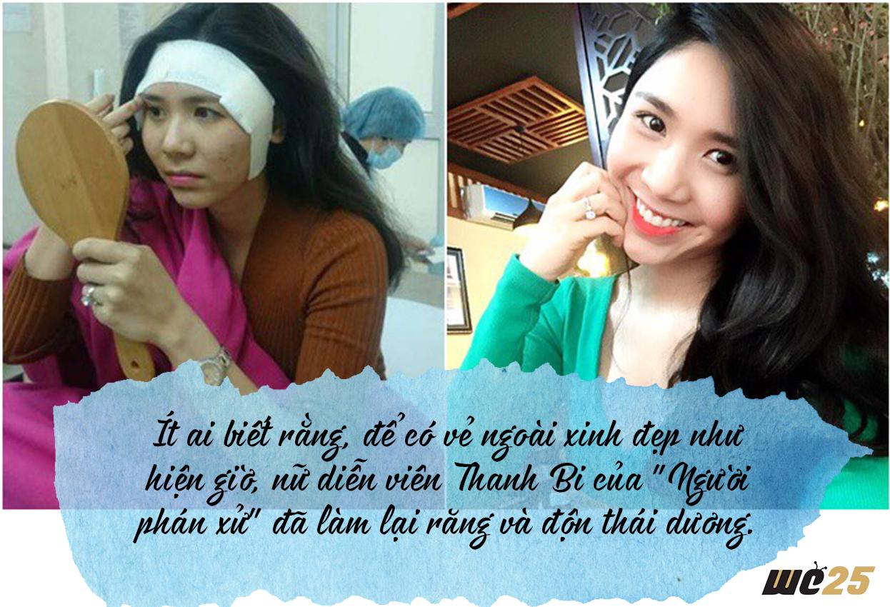 Để có được nhan sắc đẹp như hiện tại Thanh Bi cũng từng bỏ không ít công sức vào phần trán của mình.