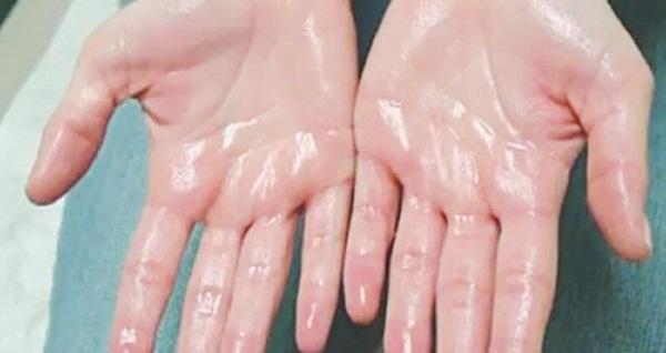 Hè đến rồi, thực hiện ngay 4 biện pháp này để loại bỏ sự khó chịu của bệnh ra mồ hôi tay nào!