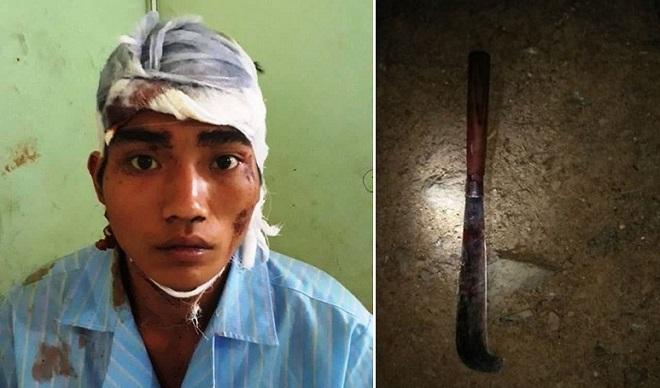 Nghi án thanh niên ngáo đá chém chết con gái 2 tuổi, chém vợ bị thương rồi tự chém vào đầu