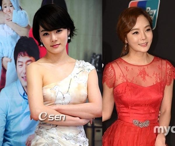 Lạm dụng PTTM, người tình của Jang Dong Gun khiến nhiều người tiếc nuối