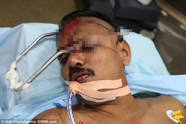 Người đàn ông bị một thanh kim loại đâm xuyên hộp sọ sống sót như một phép màu tái sinh
