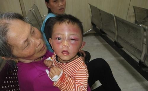 """Bé trai 2 tuổi bị cha dượng đánh nhừ tử vì """"nghịch và phá đồ của hàng xóm"""""""