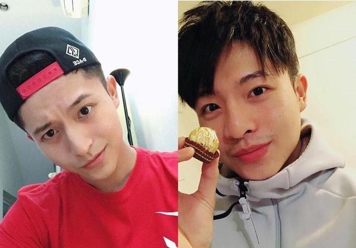 Gương mặt Harry Lu thay đổi khá nhiều sau khi gặp tai nạn